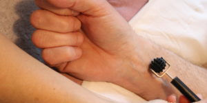 Restauration des cicatrices